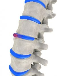 Wesley Chapel chiropractic care relieves herniated discs